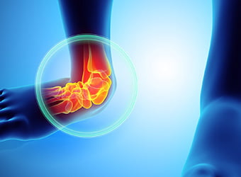 Foot & Ankle Treatment In Redding