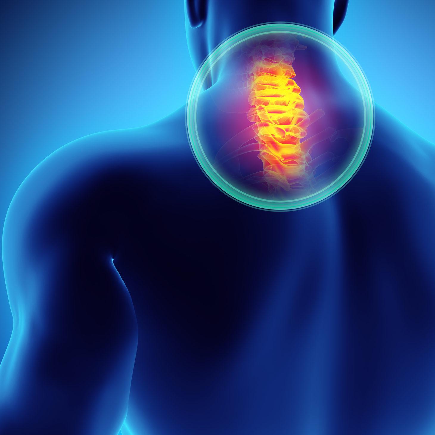 Neck Pain Treatment In Redding