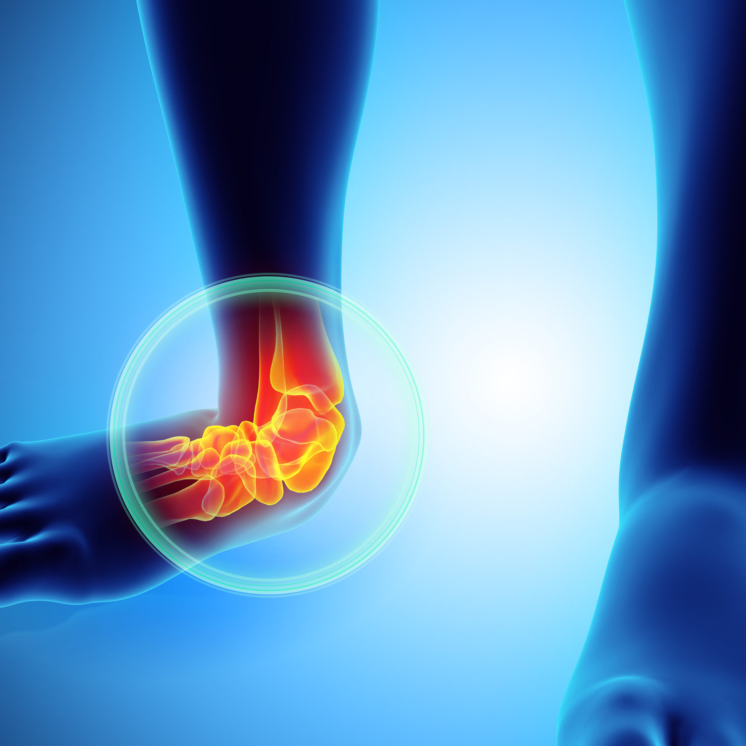 Ankle Pain Treatment In Redding