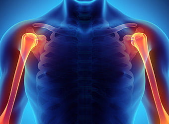 Shoulder & Elbow Treatment In Redding