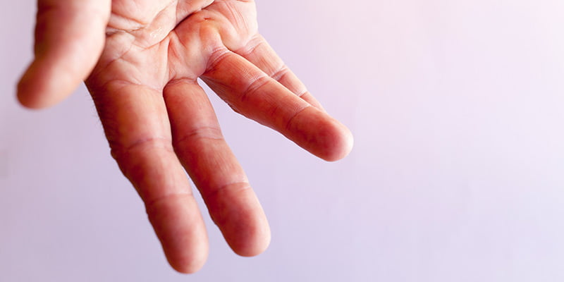 Treatment for Patients with Dupuytren's contracture