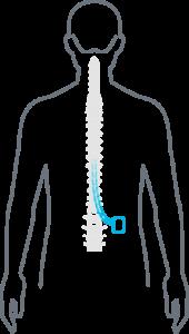 Spinal Cord Stimulator diagram