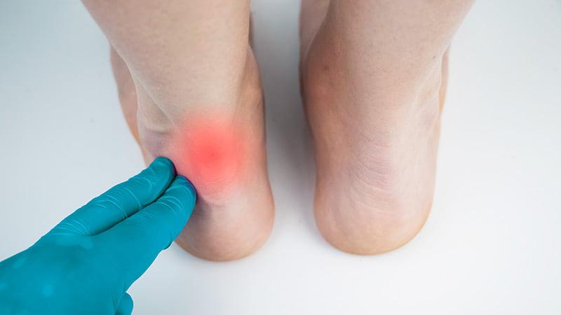 Achilles Tendinopathy Symptoms