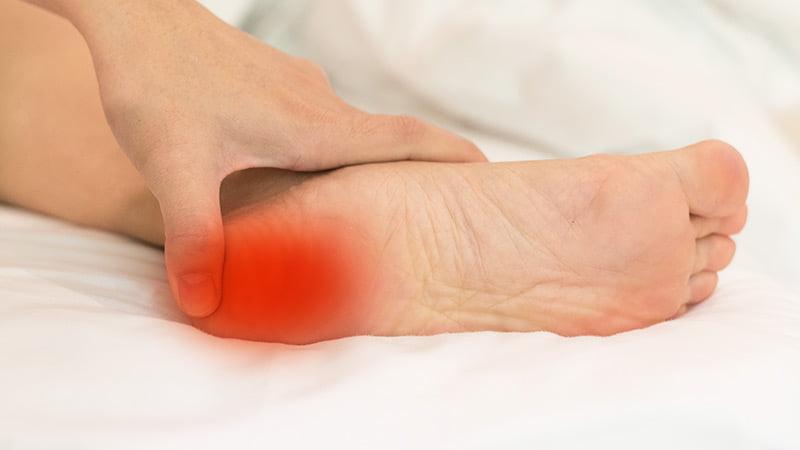 Heel Spurs Symptoms