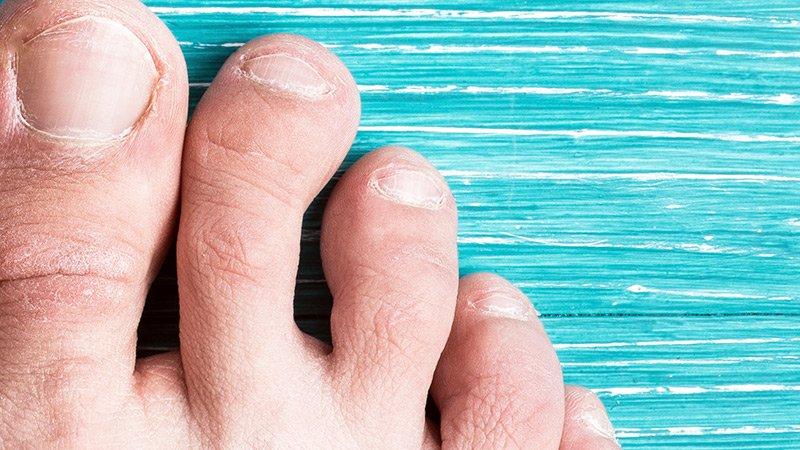 Toe Joint Deformities