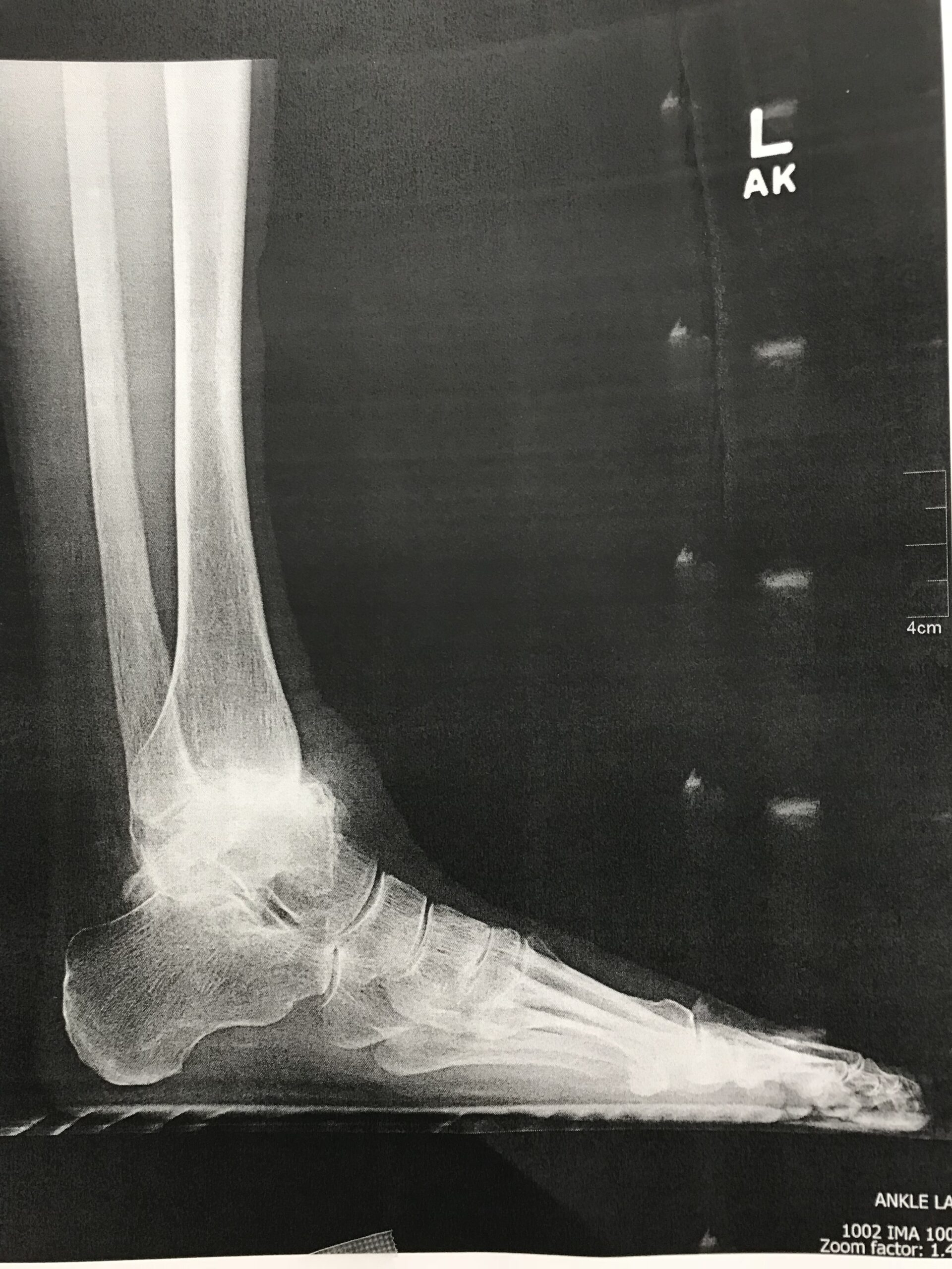 Total Ankle Replacement Arthroplasty x ray image a shasta orthopaedics 051721