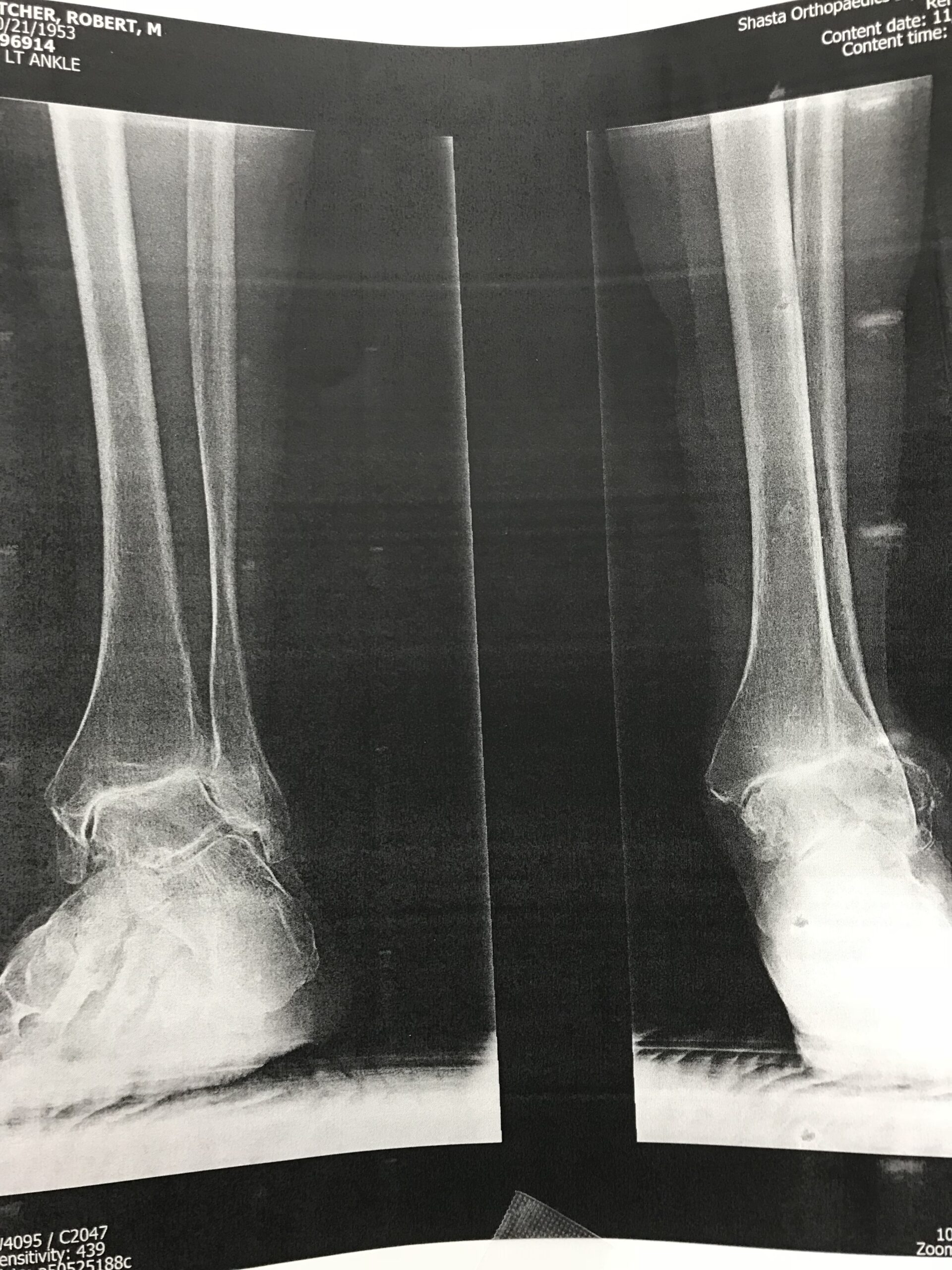 Total Ankle Replacement Arthroplasty x ray image b shasta orthopaedics 051721