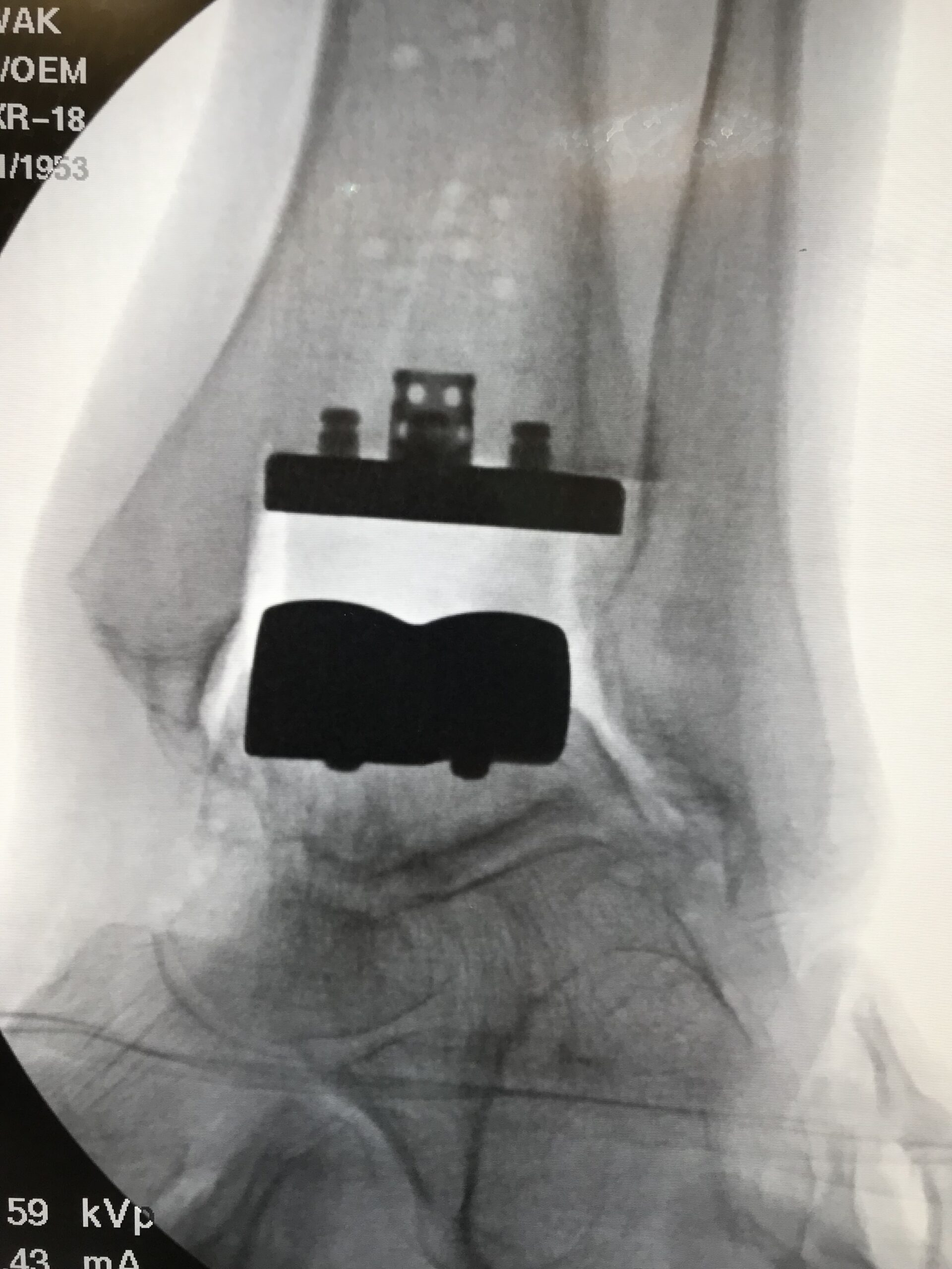 Total Ankle Replacement Arthroplasty x ray image c shasta orthopaedics 051721
