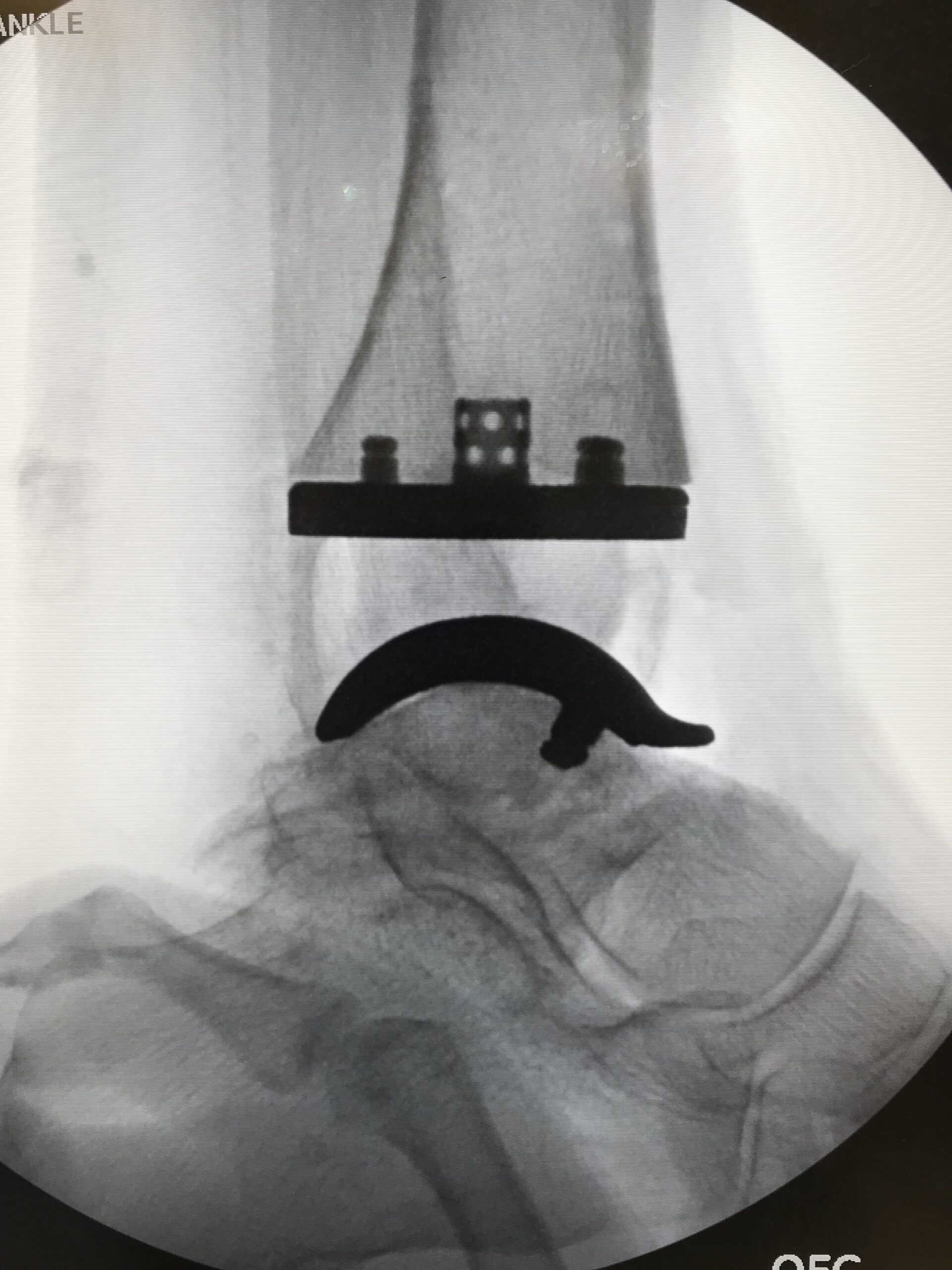 Total Ankle Replacement Arthroplasty x ray image d shasta orthopaedics 051721