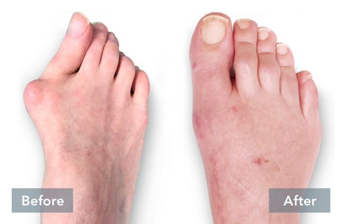 lapiplasty before and after 3d bunion correction a 051721