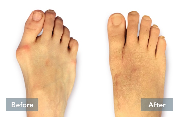 lapiplasty before and after 3d bunion correction b 051721