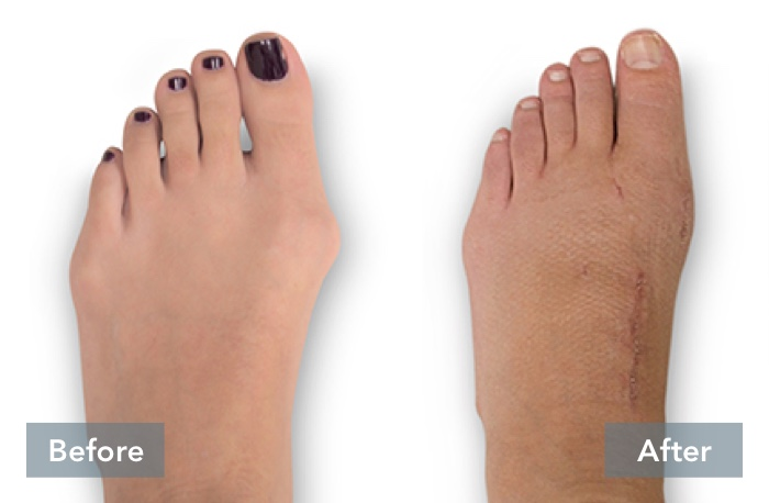 lapiplasty before and after 3d bunion correction c 051721