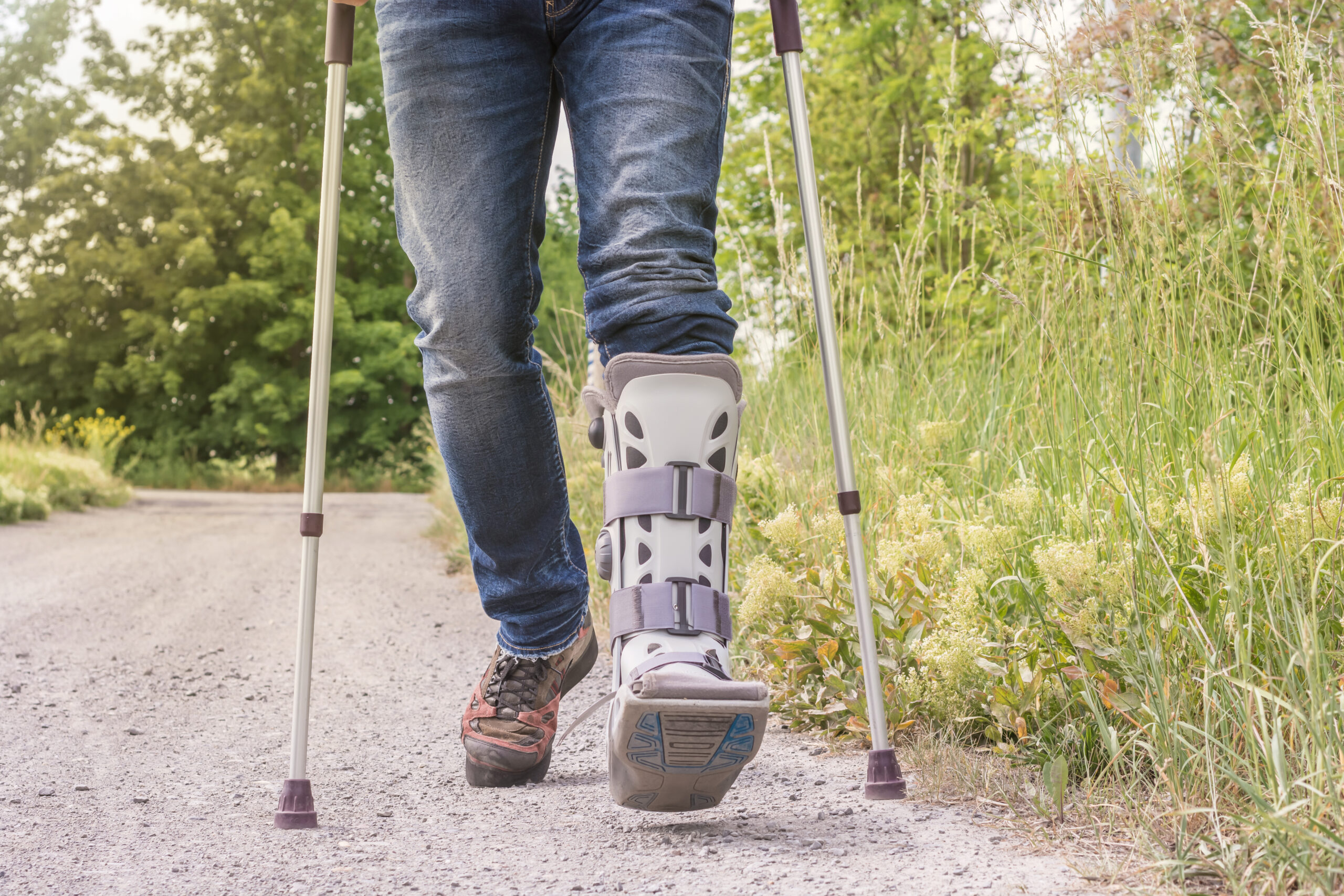 woman walking in crutches with boot bunion correction surgery shasta orthopaedics 051721