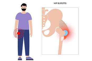 Trochanteric Bursitis, hip pain treatment