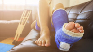 Fractured foot, fractured ankle, ankle and foot doctors in Redding